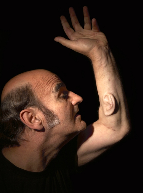 Stelarc, Extra Ear: Ear on Arm, photo Nina Sellars
